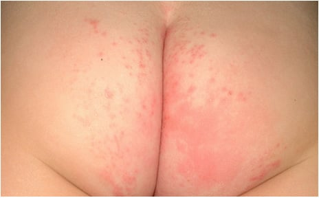 Severe Diaper Rash Picture