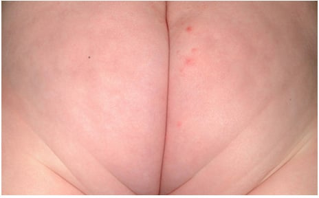 Slight Diaper Rash Picture with Papules